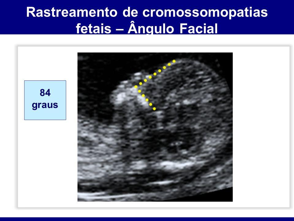 Rastreamento de cromossomopatias fetais – Ângulo Facial 84 graus