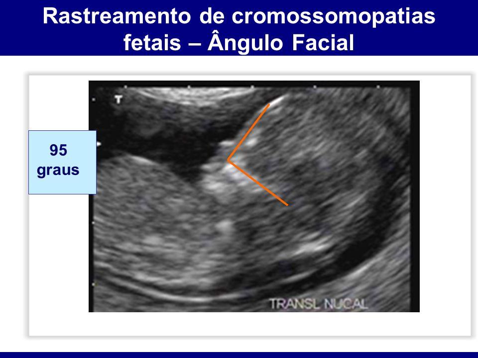 Rastreamento de cromossomopatias fetais – Ângulo Facial 95 graus