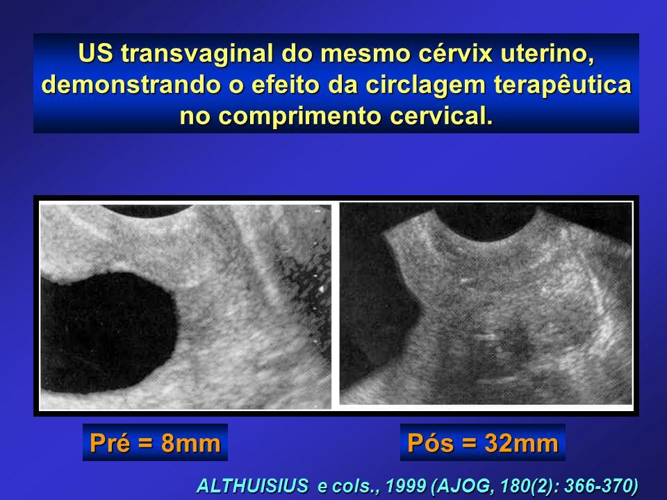 ALTHUISIUS e cols., 1999 (AJOG, 180(2): 366-370) US transvaginal do mesmo cérvix uterino, demonstrando o efeito da circlagem terapêutica no compriment
