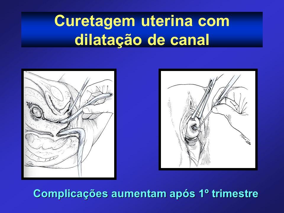 Curetagem uterina com dilatação de canal Complicações aumentam após 1º trimestre