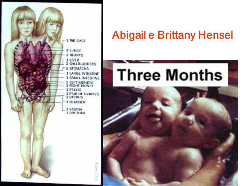 Abigail e Brittany Hensel