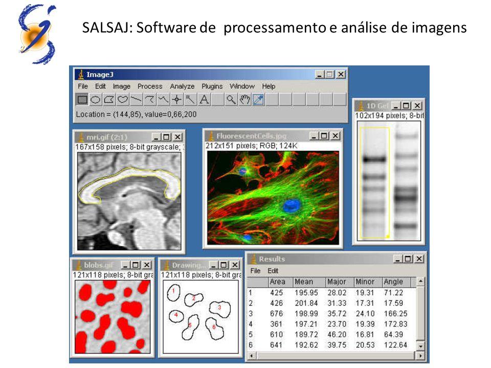 SALSAJ: Software de processamento e análise de imagens