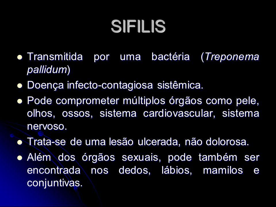 SIFILIS Transmitida por uma bactéria (Treponema pallidum) Transmitida por uma bactéria (Treponema pallidum) Doença infecto-contagiosa sistêmica. Doenç