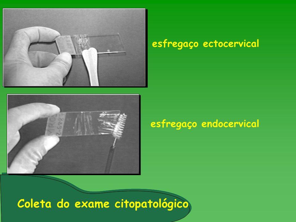 esfregaço ectocervical esfregaço endocervical Coleta do exame citopatológico