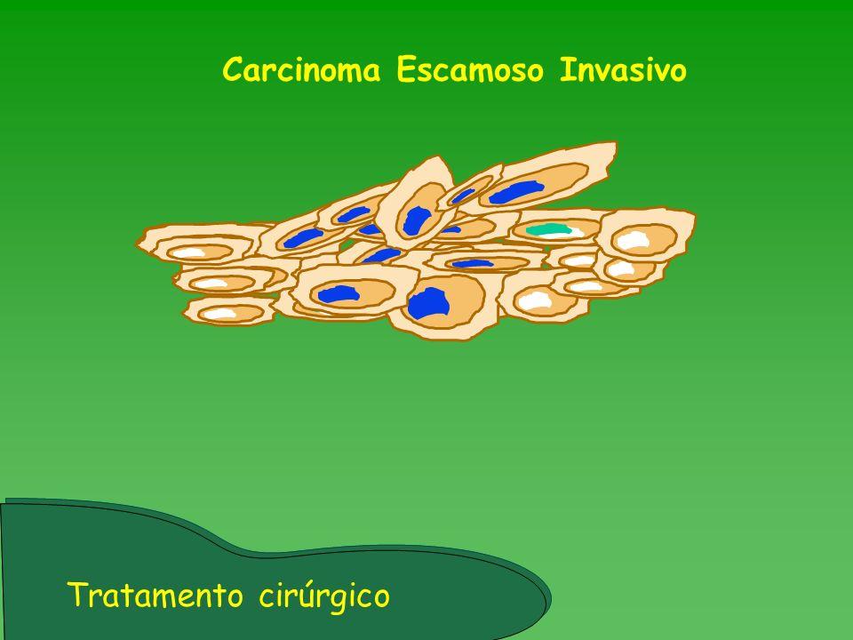 Carcinoma Escamoso Invasivo Tratamento cirúrgico