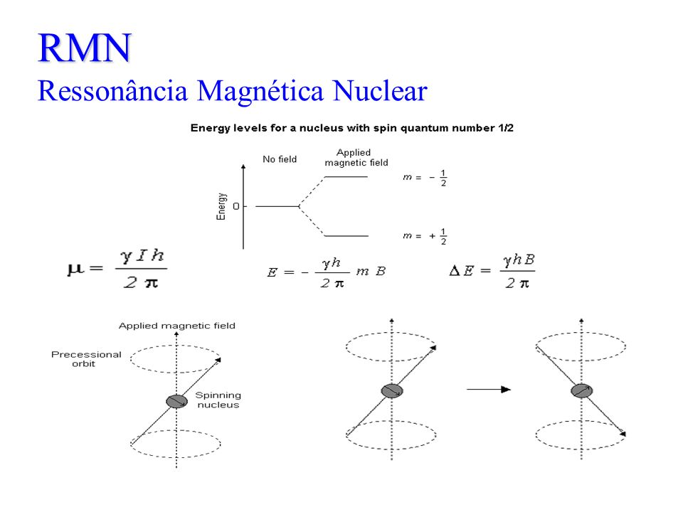 RMN RMN Ressonância Magnética Nuclear