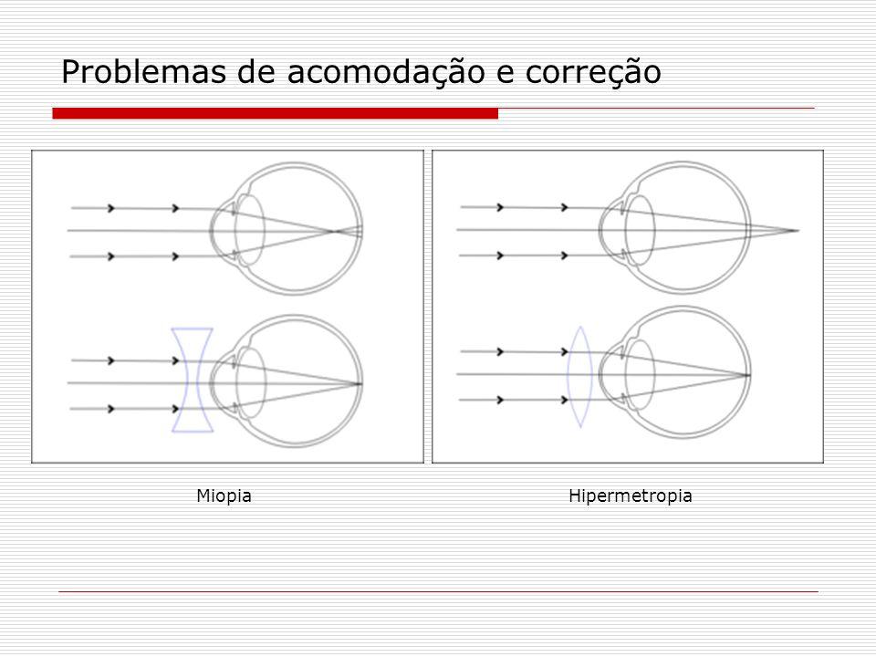 Problemas de acomodação e correção MiopiaHipermetropia