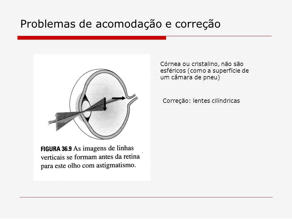 Problemas de acomodação e correção Córnea ou cristalino, não são esféricos (como a superfície de um câmara de pneu) Correção: lentes cilíndricas