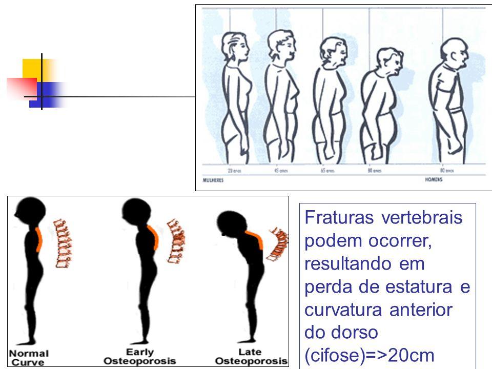 Fraturas vertebrais podem ocorrer, resultando em perda de estatura e curvatura anterior do dorso (cifose)=>20cm