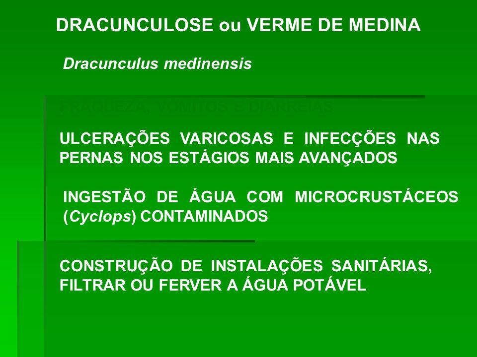 DRACUNCULOSE ou VERME DE MEDINA Dracunculus medinensis FRAQUEZA, VÔMITOS E DIARRÉIAS ULCERAÇÕES VARICOSAS E INFECÇÕES NAS PERNAS NOS ESTÁGIOS MAIS AVA