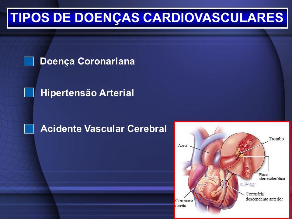 TIPOS DE DOENÇAS CARDIOVASCULARES Doença Coronariana Hipertensão Arterial Acidente Vascular Cerebral