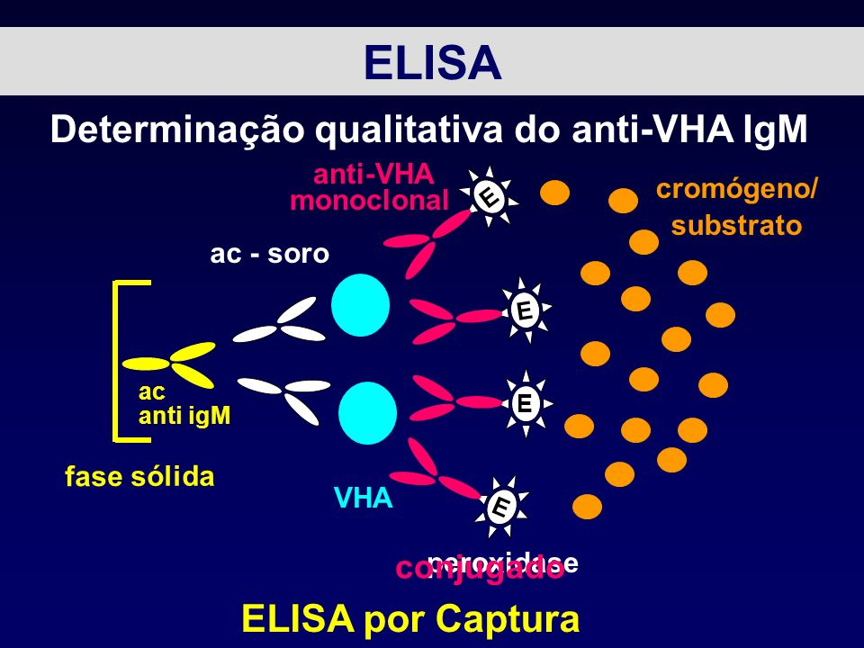 Determinação qualitativa do anti-VHA IgM ELISA por Captura ac - soro VHA E E E E anti-VHA monoclonal peroxidase conjugado cromógeno/ substrato fase só