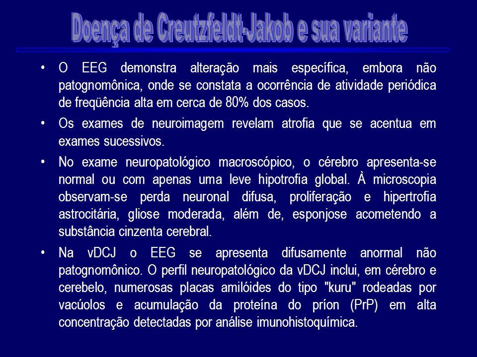 O EEG demonstra alteração mais específica, embora não patognomônica, onde se constata a ocorrência de atividade periódica de freqüência alta em cerca