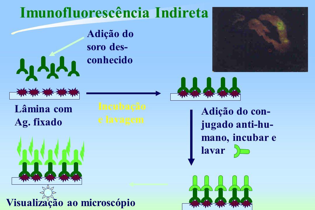 Imunofluorescência Indireta Lâmina com Ag. fixado Adição do soro des- conhecido Visualização ao microscópio Incubação e lavagem Adição do con- jugado