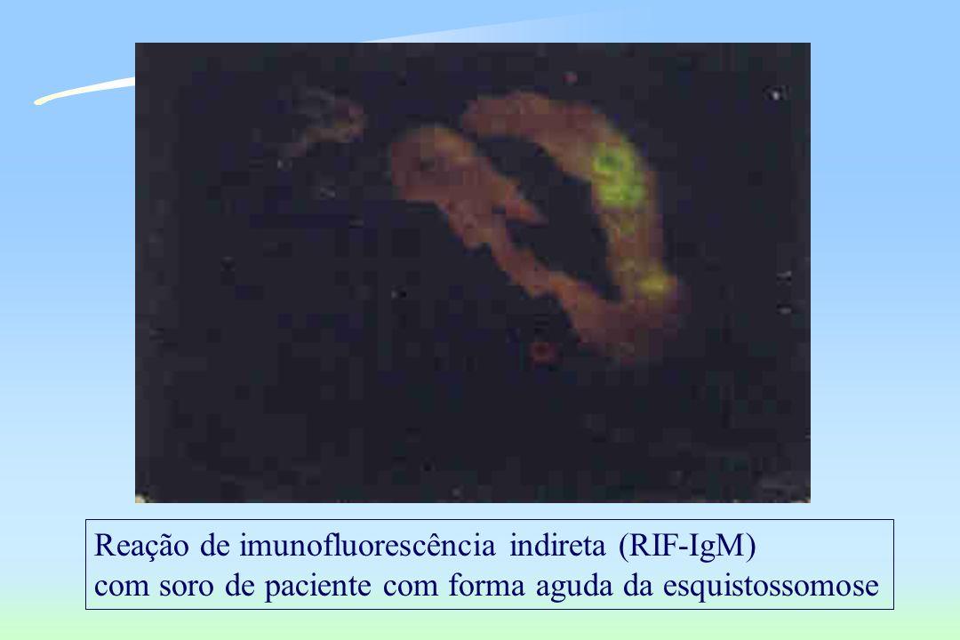 Reação de imunofluorescência indireta (RIF-IgM) com soro de paciente com forma aguda da esquistossomose
