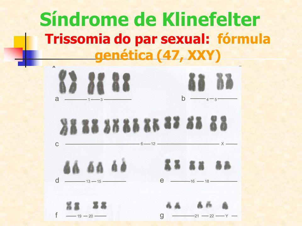 Síndrome de Klinefelter Trissomia do par sexual: fórmula genética (47, XXY)