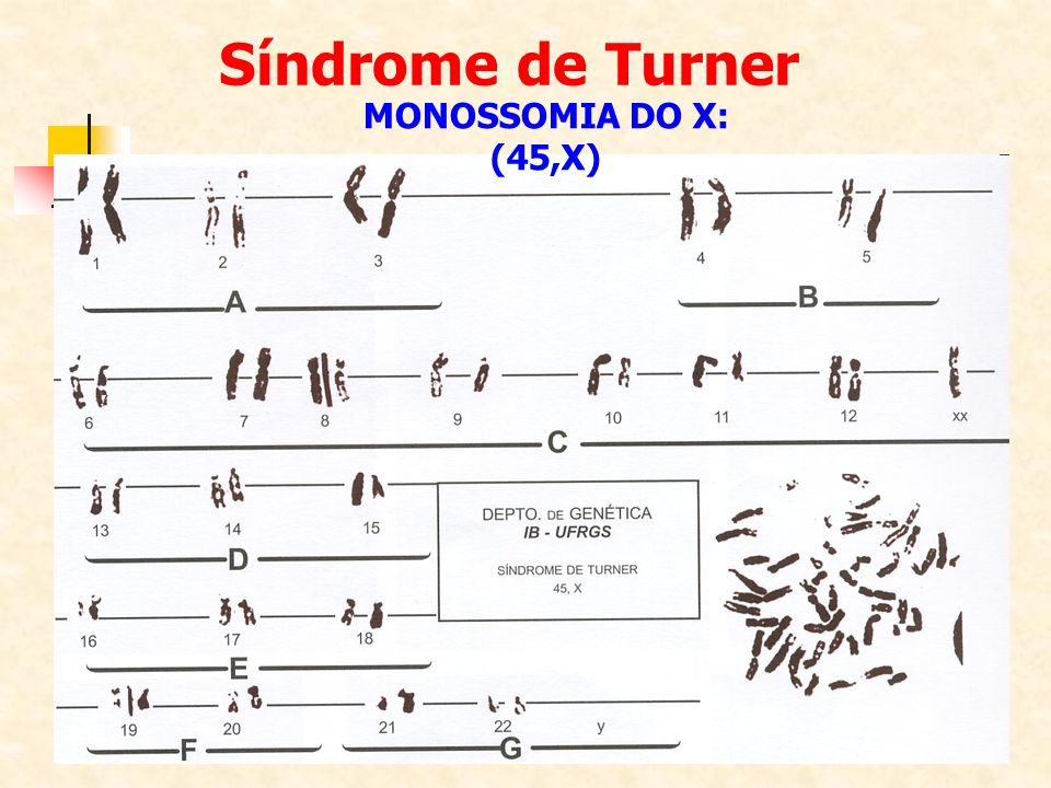 Síndrome de Turner MONOSSOMIA DO X: (45,X)