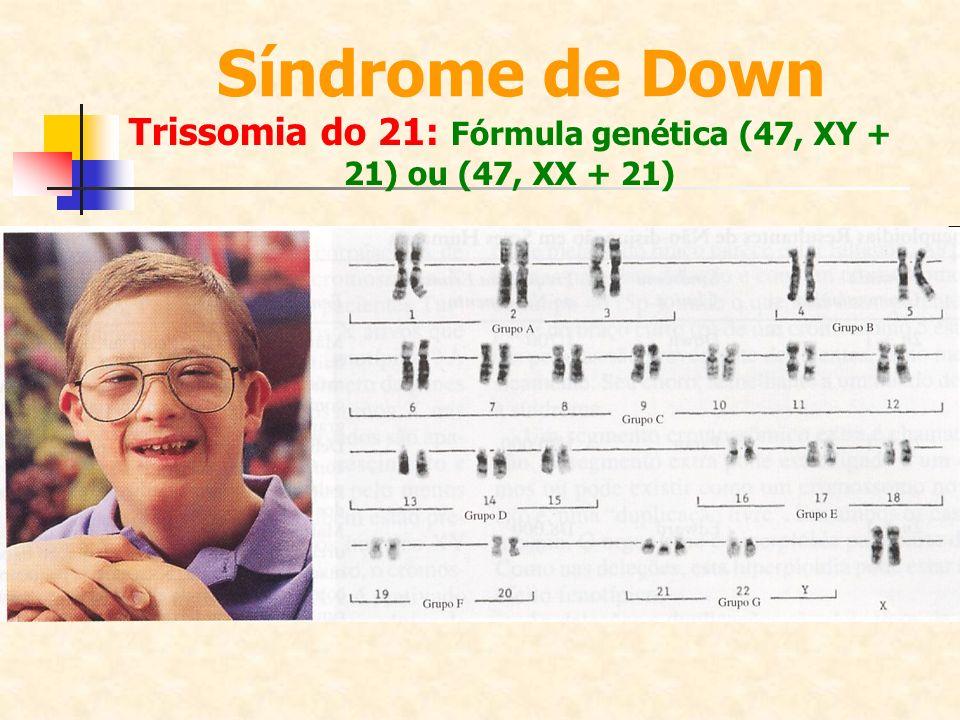 Trissomia do 21: Fórmula genética (47, XY + 21) ou (47, XX + 21) Síndrome de Down