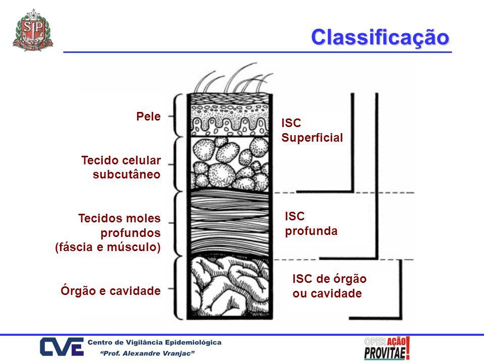 Pele Tecido celular subcutâneo Tecidos moles profundos (fáscia e músculo) Órgão e cavidade ISC Superficial ISC profunda ISC de órgão ou cavidade Class