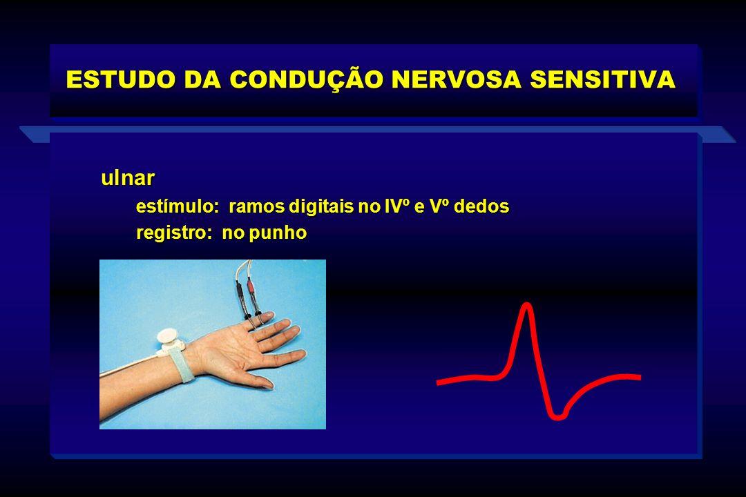 ulnar estímulo: ramos digitais no IVº e Vº dedos estímulo: ramos digitais no IVº e Vº dedos registro: no punho registro: no punho