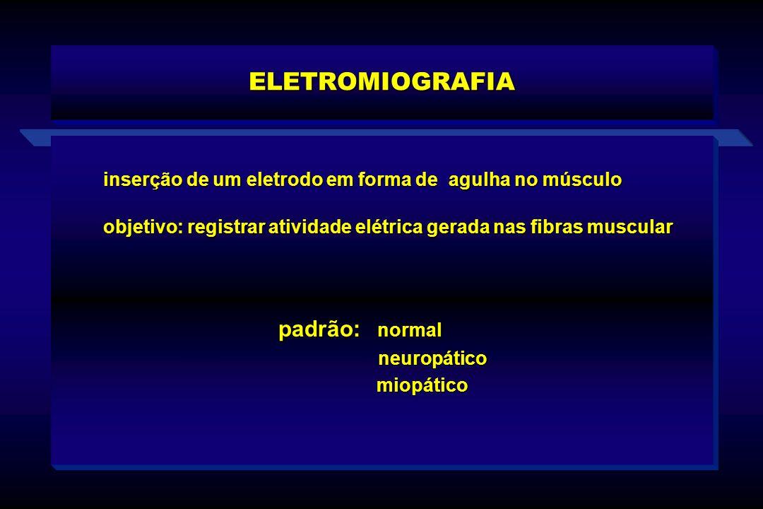 ELETROMIOGRAFIA padrão: normal neuropático neuropático miopático miopático inserção de um eletrodo em forma de agulha no músculo objetivo: registrar a