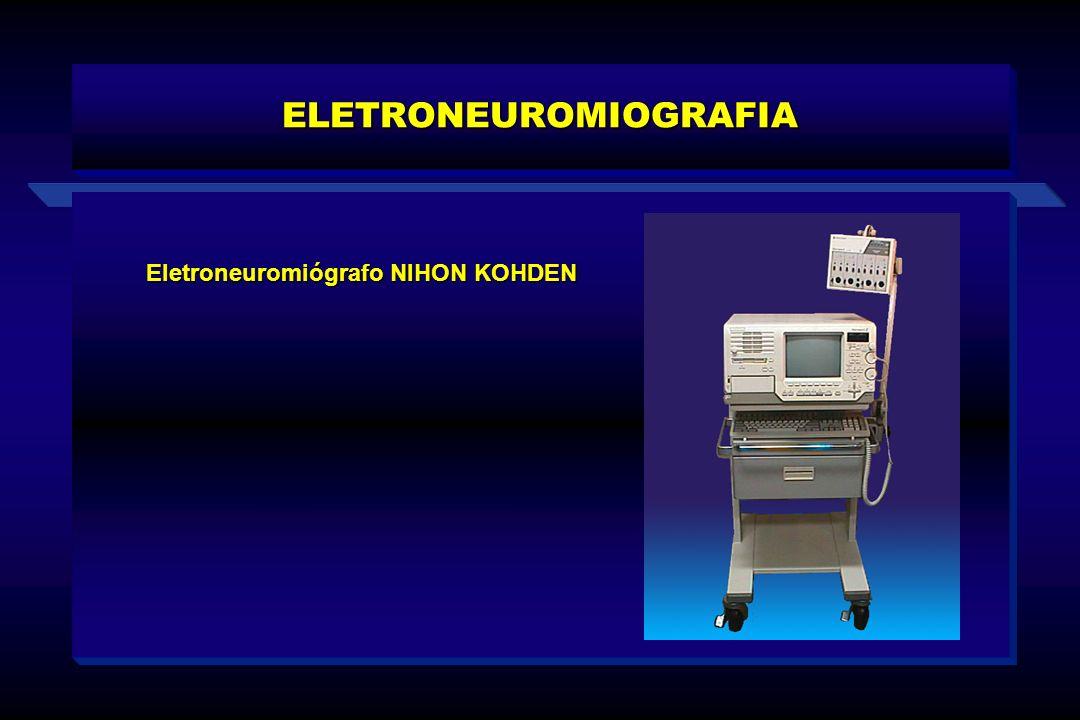 Eletroneuromiógrafo NIHON KOHDEN ELETRONEUROMIOGRAFIA
