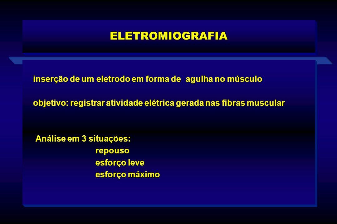 ELETROMIOGRAFIA inserção de um eletrodo em forma de agulha no músculo objetivo: registrar atividade elétrica gerada nas fibras muscular Análise em 3 s