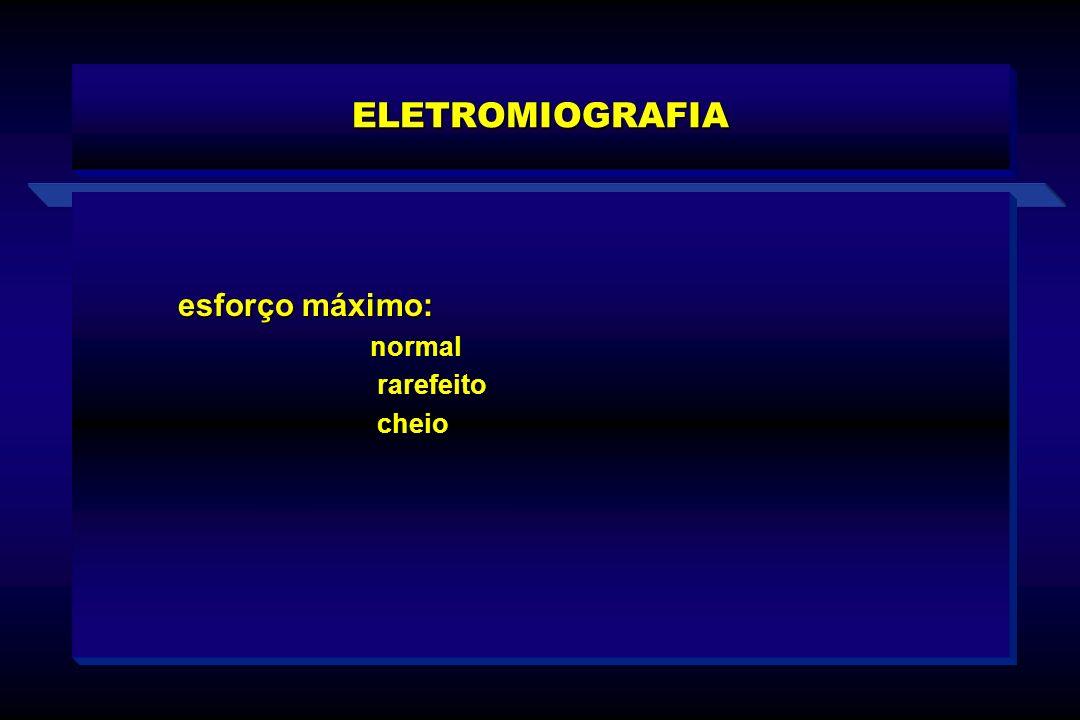 ELETROMIOGRAFIA esforço máximo: normal rarefeito cheio