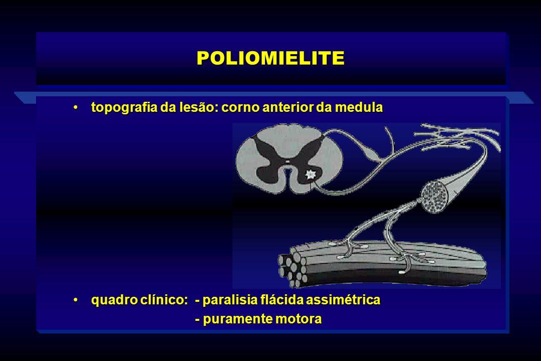 POLIOMIELITE topografia da lesão: corno anterior da medulatopografia da lesão: corno anterior da medula quadro clínico: - paralisia flácida assimétric