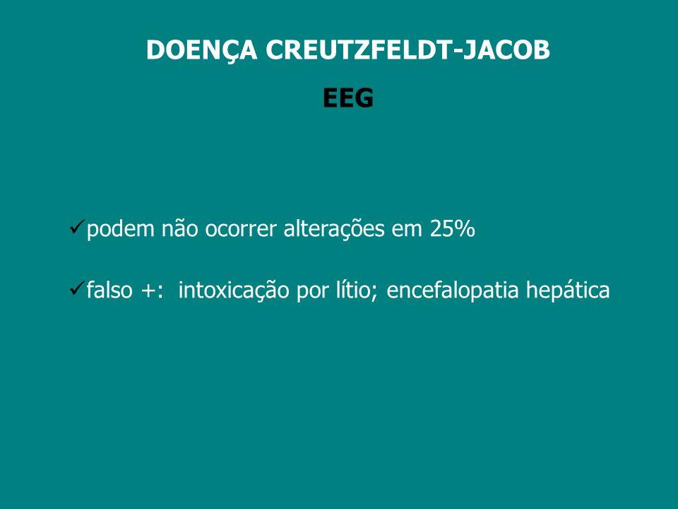 acidente vascular cerebral meningoencefalites sd paraneoplásicas vasculites tumores encefalopatia de Hashimoto estado de mal epiléptico neurossífilis sd demenciais LCR – PROTEÍNA 14.3.3 falso positivos