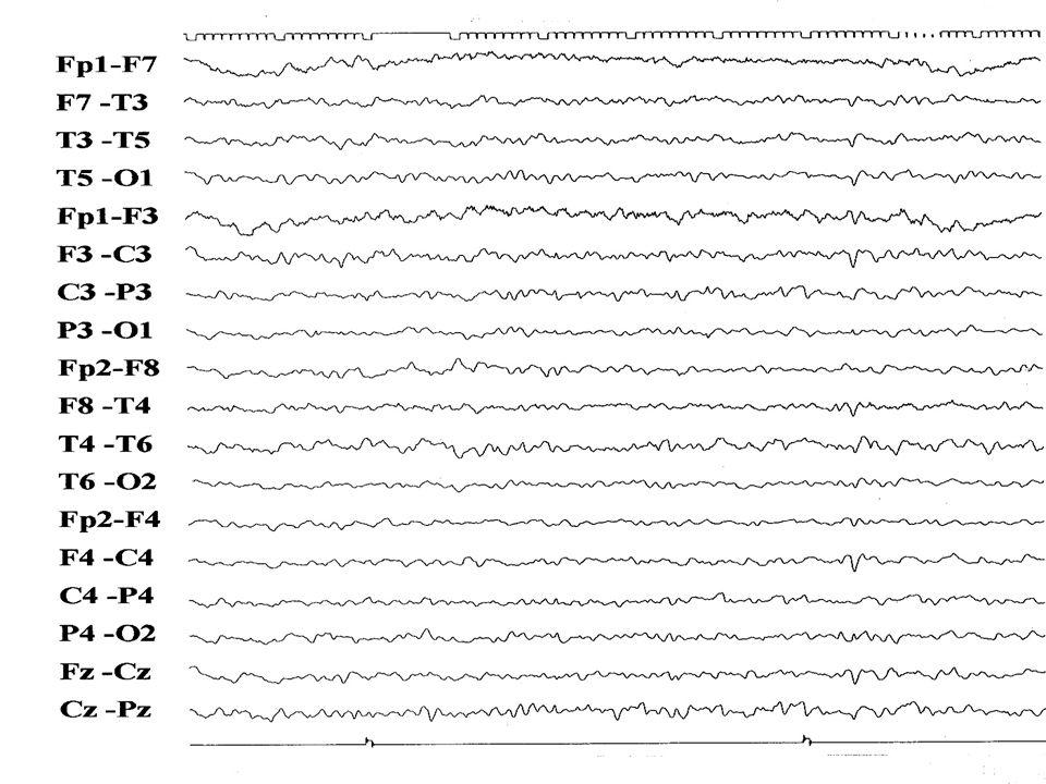 experiência NIH Kenney KL et al Neurology 2002; 58:S3 1992 - 20011518 amostras DCJ Definido157 DCJ Provável165 sens 85,4%esp94,5% LCR – PROTEÍNA 14.3.3