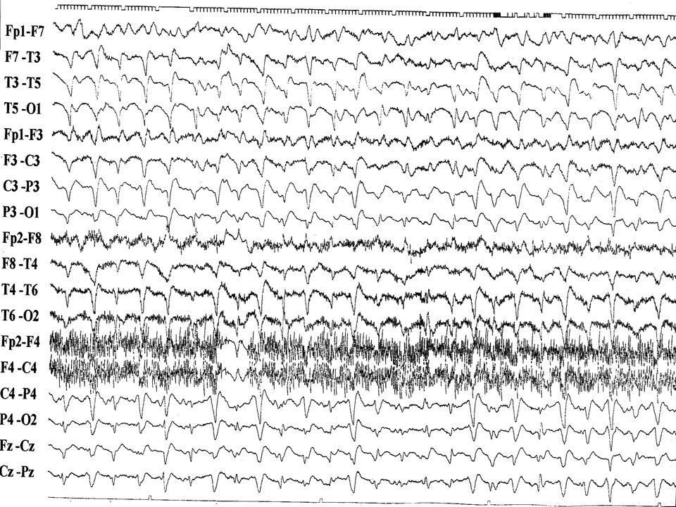 Geswind M D et al (Prusiner S) Neurology 2002; 58:S3 16 pacientes DCJ anat-patol 7 - 14.3.3.