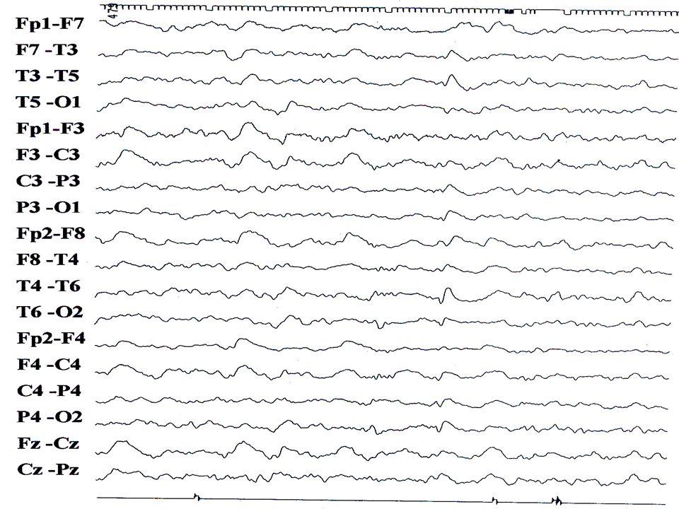 DOENÇA CREUTZFELDT-JACOB ressonância magnética sinal no córtex e nn da base em T2, FLAIR e difusão maior sens/espec na difusão – moléculas de H 2 O fases precoces entre as formas genotípicas e a evolução relação com depósitos de placas amilóides e degeneração espongiforme