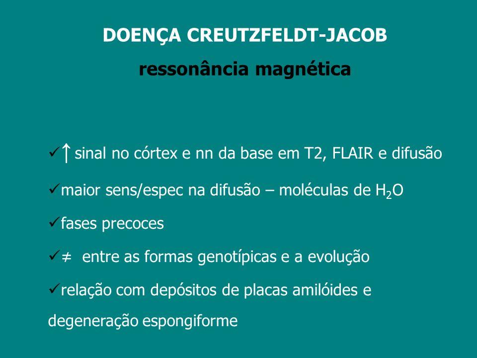 DOENÇA CREUTZFELDT-JACOB ressonância magnética sens espec Finkelnstaedt, 2000 162 casos 67% 93% 63% 88% Meissner, 2004 153 casos