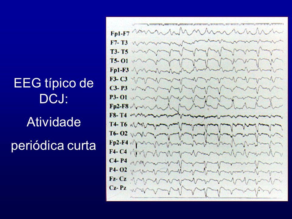 EEG típico de DCJ: Atividade periódica curta