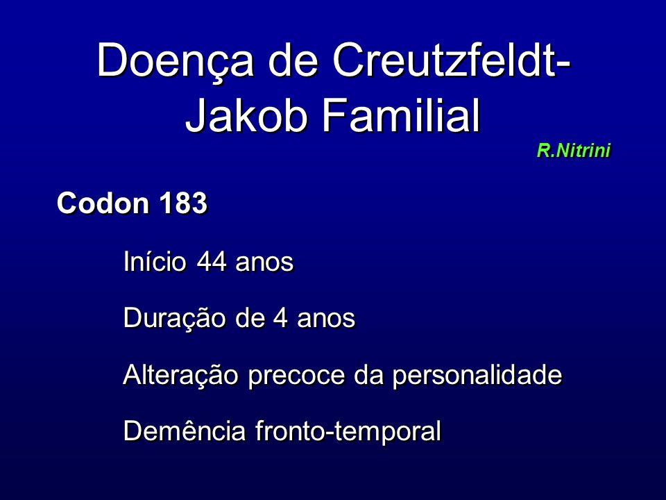 Doença de Creutzfeldt- Jakob Familial R.Nitrini Codon 183 Início 44 anos Duração de 4 anos Alteração precoce da personalidade Demência fronto-temporal