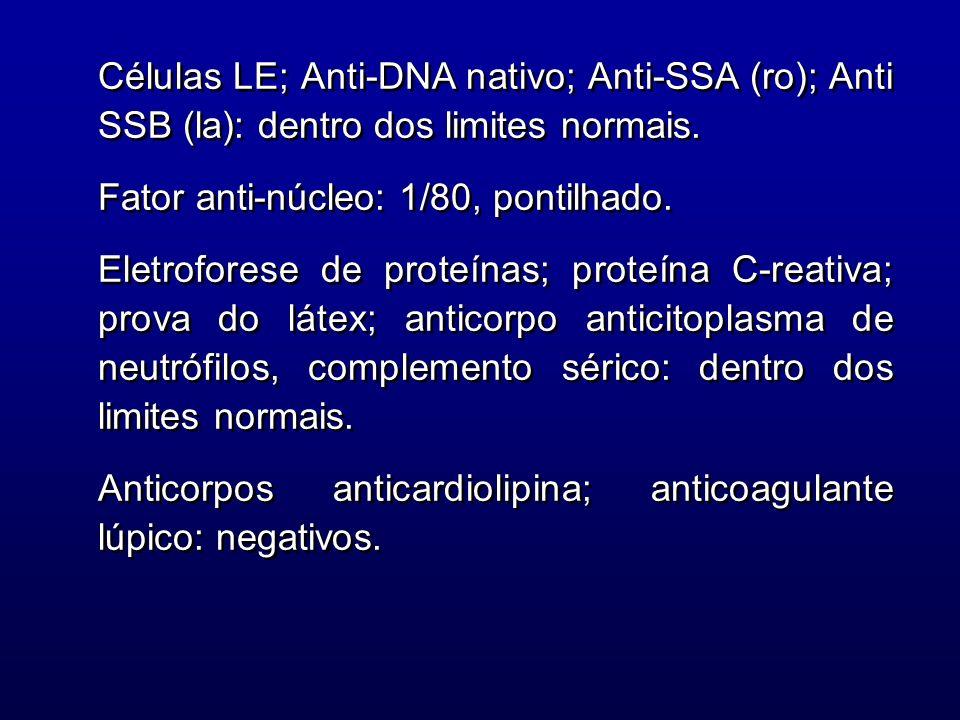 Células LE; Anti-DNA nativo; Anti-SSA (ro); Anti SSB (la): dentro dos limites normais. Fator anti-núcleo: 1/80, pontilhado. Eletroforese de proteínas;