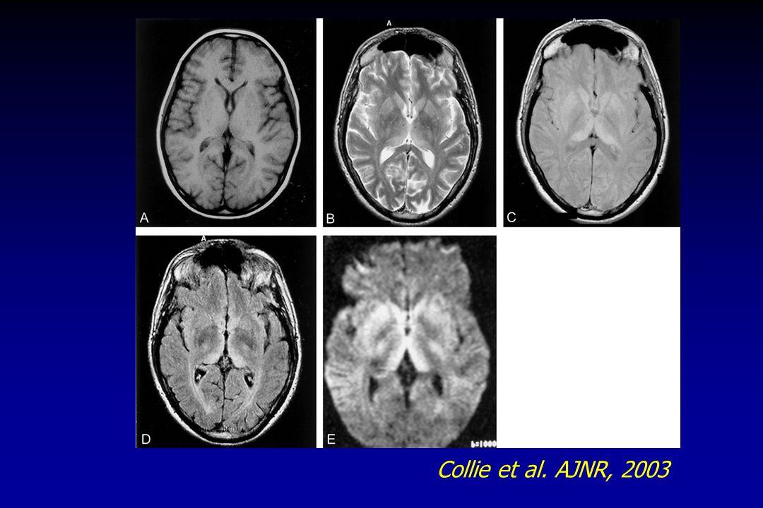 Collie et al. AJNR, 2003