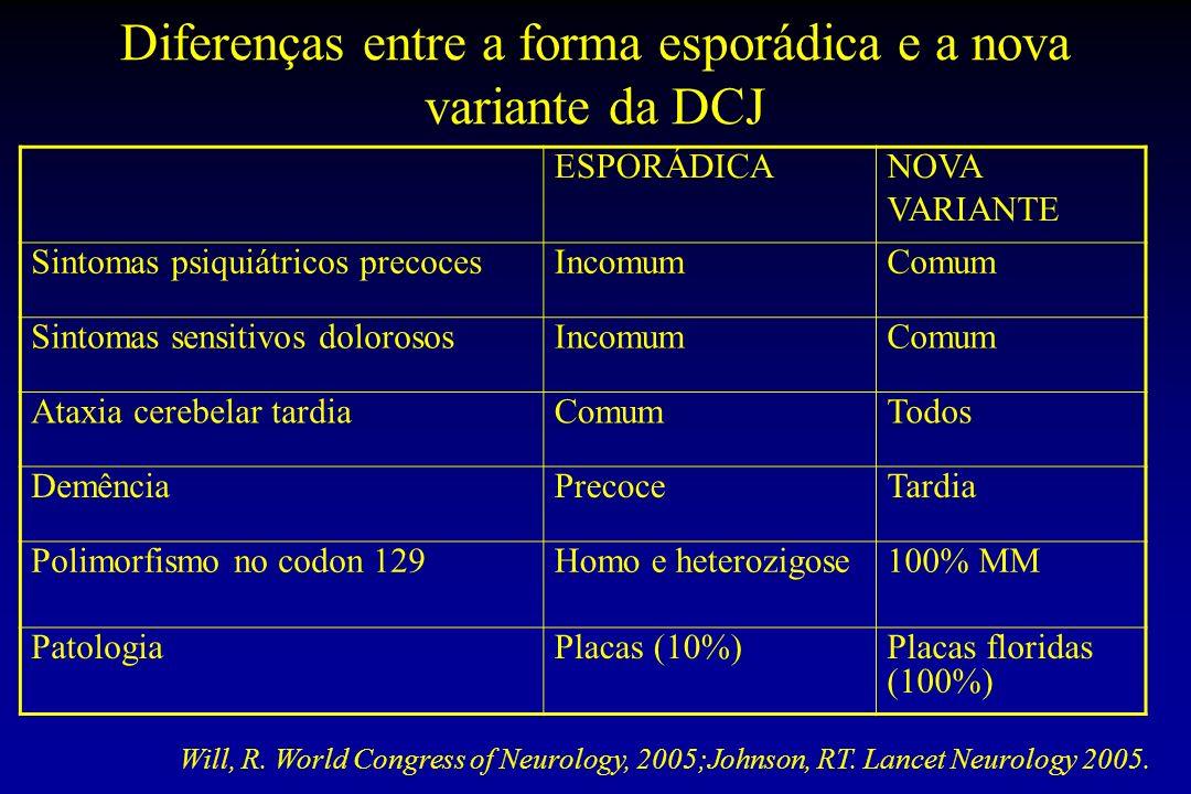 Diferenças entre a forma esporádica e a nova variante da DCJ ESPORÁDICANOVA VARIANTE Sintomas psiquiátricos precocesIncomumComum Sintomas sensitivos d