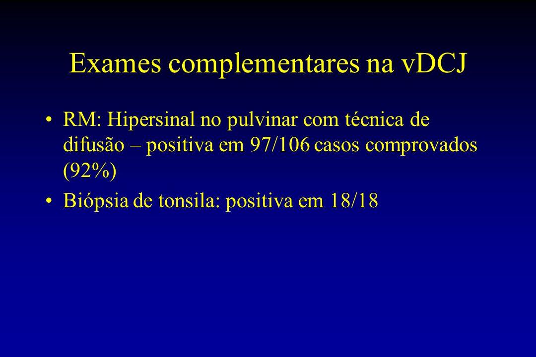 Exames complementares na vDCJ RM: Hipersinal no pulvinar com técnica de difusão – positiva em 97/106 casos comprovados (92%) Biópsia de tonsila: positiva em 18/18