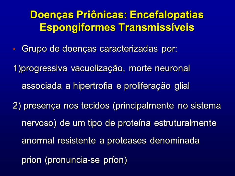 Doenças Priônicas: Encefalopatias Espongiformes Transmissíveis Grupo de doenças caracterizadas por: 1)progressiva vacuolização, morte neuronal associa