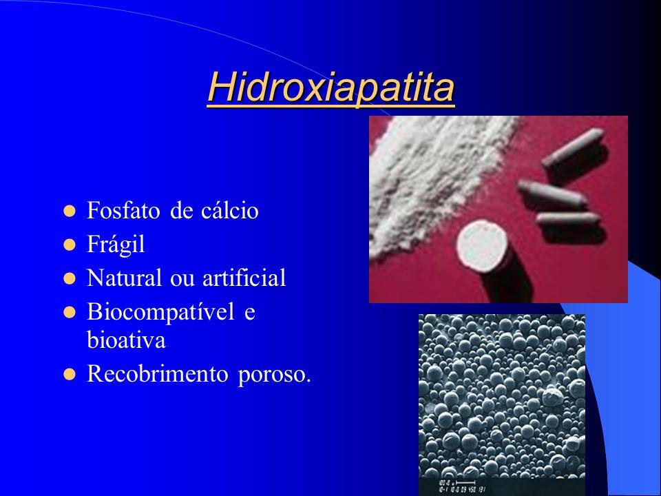 Hidroxiapatita Fosfato de cálcio Frágil Natural ou artificial Biocompatível e bioativa Recobrimento poroso.