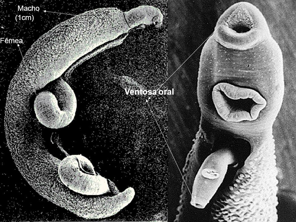 Ventosa oral Macho (1cm) Fêmea