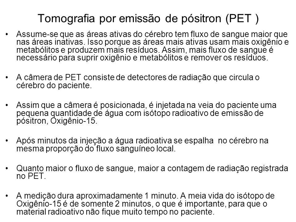 Tomografia por emissão de pósitron (PET ) Assume-se que as áreas ativas do cérebro tem fluxo de sangue maior que nas áreas inativas. Isso porque as ár