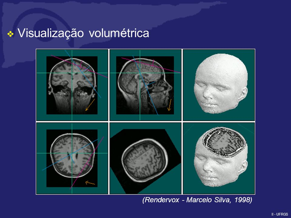 II - UFRGS Visualização volumétrica (Rendervox - Marcelo Silva, 1998)