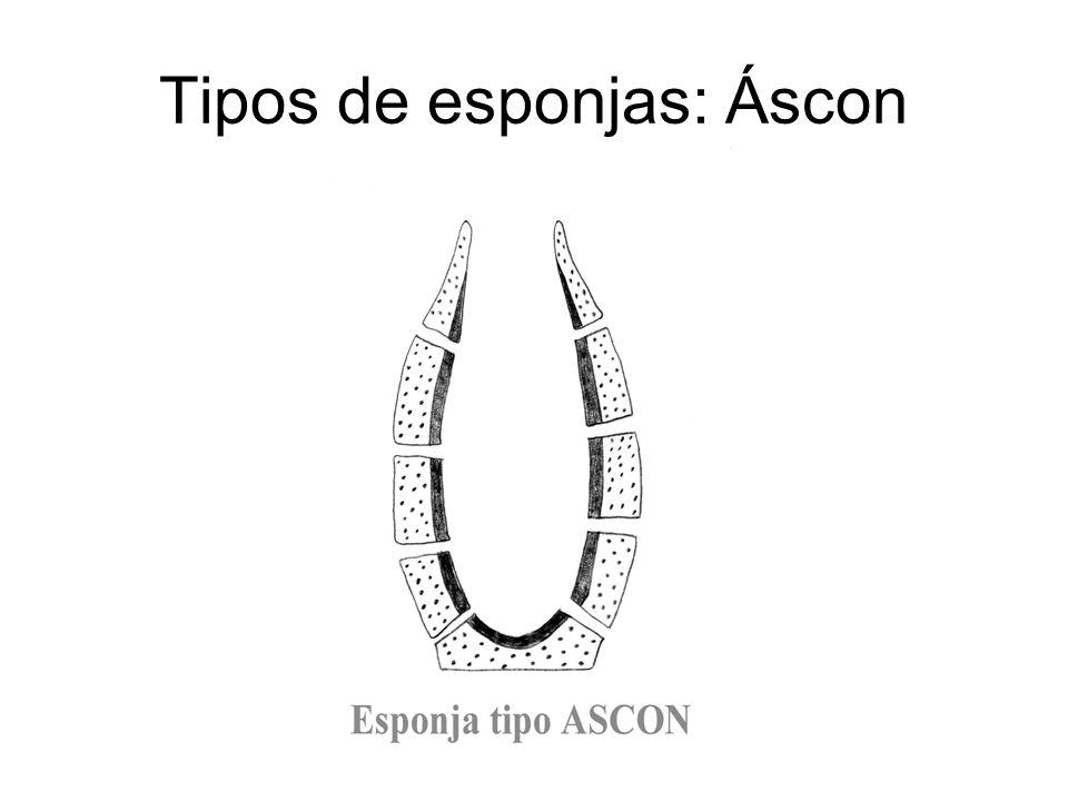 Tipos de esponjas: Áscon
