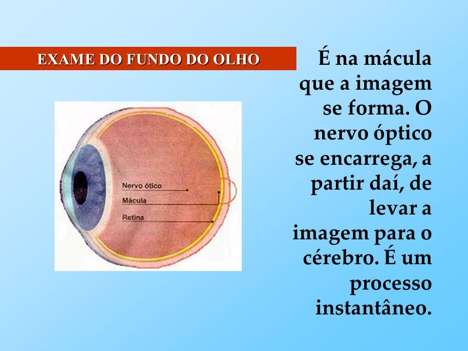 O olho, que é observado com o oftalmoscópio, pode apresentar uma atrofia do nervo óptico, uma hipertensão intracraniana, anomalias dos vasos e da circulação, hemorragias, edema, degenerescências da retina.
