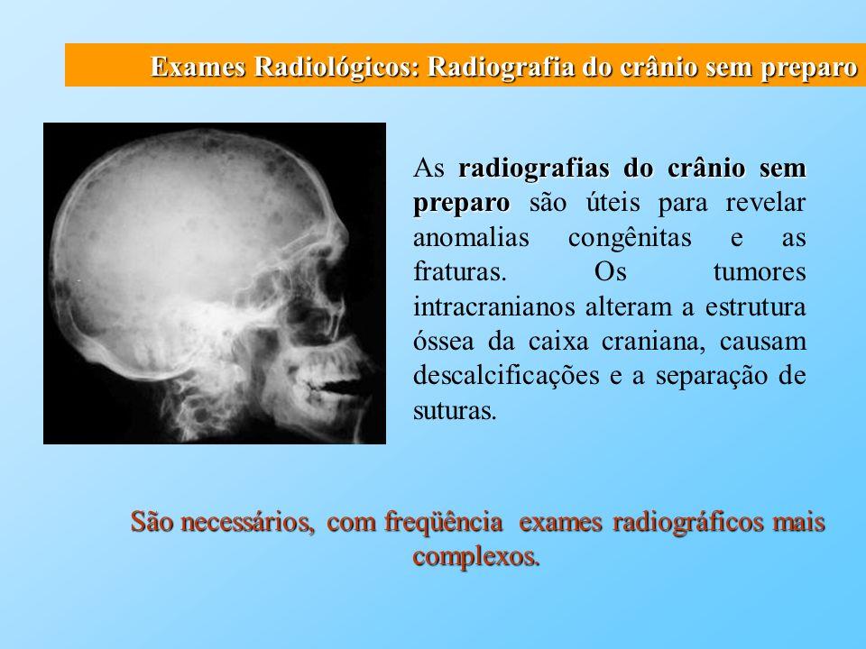 Exames Radiológicos: Imageamento por tomografia computadorizada Utiliza um feixe estreito de raios X para escanear a cabeça em camadas sucessivas.