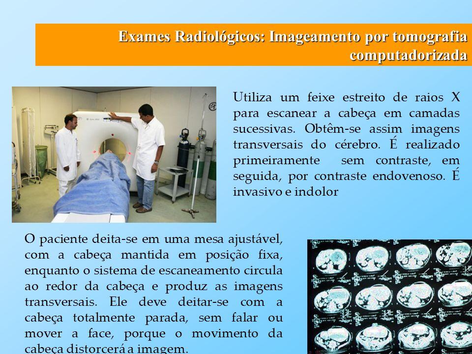 Exames Radiológicos: Imageamento por ressonância magnética A Ressonância Magnética e um dos métodos mais recentes e avançados no diagnóstico por imagem, com ampla utilização nas diversas áreas médicas.