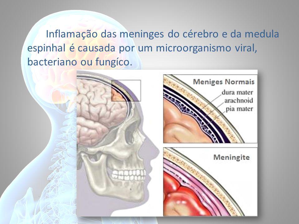 Inflamação das meninges do cérebro e da medula espinhal é causada por um microorganismo viral, bacteriano ou fungíco.